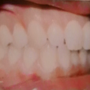 My actual teeth