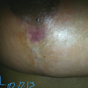 Left breast upper (smaller) wound, totally healed new skin forming nicely.