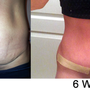 Before and 6 weeks! Look at my cute belly button!