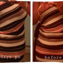 So i see a subtle diff in the shape in this dress. It fits better now. BEWARE-next pic is extremely graphic! Dont click next if u have a weak stomach! I warned you!