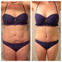 Before and 2 weeks post op 12/27/13