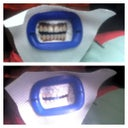 Before & After zoom whitening 8-22-2013