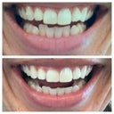 Top pic is prior to starting Invisalign, bottom pic is after my top trays are complete. 100 days.