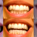 Pre Invisalign, Refinement 1 Tray 1, Refinement 1 Tray 2