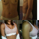 top left: before 32 AA I believe. top right: side view with little projection. bottom left: day of surgery 425 cc high profile silicon under the muscle breast fold incision.  Happy with my results can't wait for them to drop.  I'll upload no-bra shots tomorrow if I can.