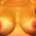 Left breast obviously smaller, this was the redo side. Other side was never a problem!