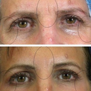 Here's a look at me Before & After. The second shot was taken about a week after my laser eyelid lift. It was incredible at eliminating wrinkles and giving my eyebrows a nice lift!