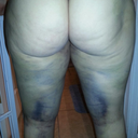 back of thighs major swelling post op 5