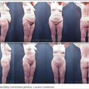 Abdominoplasty and liposuction of the back, abdomen and thighs.  Thigh lift and skin removal.