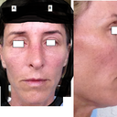 "1st photo I'm ""lifting"" my eyebrows (Line I drew from center of lips). 2nd photo is al'natural. 3rd & 4th profiles."