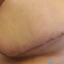 Left side scar goes back far, but not toooo far, nice and flat, just dark.