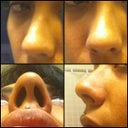 My nose from various views