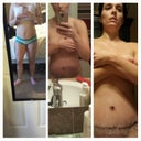 tummy progress so far. before-- post op- post op day  10day