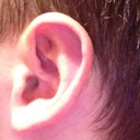 View of left ear that I'm satisfied with hardly any swelling