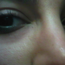 redness and swelling under right eye