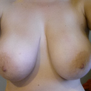 My breasts now that I've lost weight - WAY too s