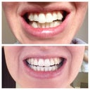 Comparison of before Invisalign and after Tray 22