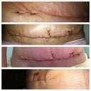 Top: wrinkles/puckers on my right side Bottom pic: the dog ear and puckers on the left of my incision.  These pics show puckers and swollen everywhere on incision.