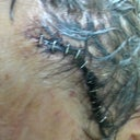 see the extra long incision and staples the other side