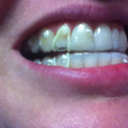 My two problem teeth are moving into the trays the way they are supposed to. Top one is moving down and bottom one is moving up.