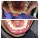 Lower Teeth (top picture 9/11/2013 and bottom picture 12/7/2013)