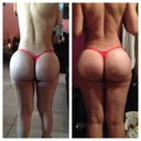 left: 2 weeks post op hard and swollen booty! right: 4 weeks post op. nice and soft and dropped. =0)