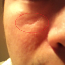 6 + years old scar from  combination acne and sun
