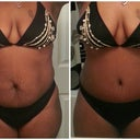 Another before and after photo.  3 Weeks Post Op....I love these before and after pictures.  Amazing!  I'm so glad a did this.  Love Love Love my belly button.