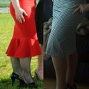 The photo on the left is about 1.5 years before the surgery (in black fishnets) and the picture on the right is 2.5 weeks after the surgery in beige tights.