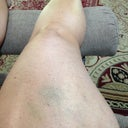 Right leg post op day 6 (minimal bruising from lipo)
