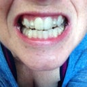 My teeth with buttons and invisalign in.