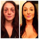 Before and after using dermablend makeup!
