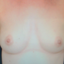 before implants- 32A, some B cups