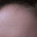 2 or 3 depressed forehead scars that I dont think are even from my acne as my acne is very moderate and not cystic