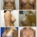 Breast wish pics. Having reduction and hope for some poll fullness.