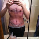 8 days post op