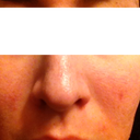 "Laser damaged skin BEFORE the peel - Pin hole texture (""micro holes"") - Some red acne scarring"