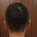 Back view, after Otoplasty.