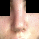 Nostril difference :(