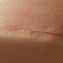 right incision 25 Dec (15 days post)