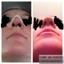 Don't be freaked out if your nostrils look weird at first... they change so much! a few days post op/a few weeks post op