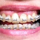 Here's my 1st day of the new braces, showing uneven front teeth.