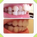 From the side. Before and during invisalign!