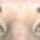 3 1/2 weeks post procedure with only mascara. Sorry for the messy mascara, my allergies are acting up and I was rubbing my lashes.