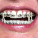 Fast Braces with mouth open