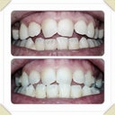 Pre Invisalign and beginning of tray 3
