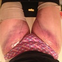 My thighs 4days post op