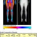 recent dexa scan