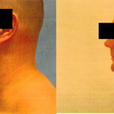Pre-op and 3 month post-op profile