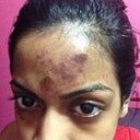 This is how my forehead looks after one day from chemical peel.